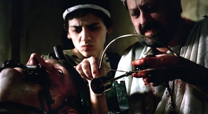 手術をする古代ローマの医師(ドラマ「ROME」の映像)